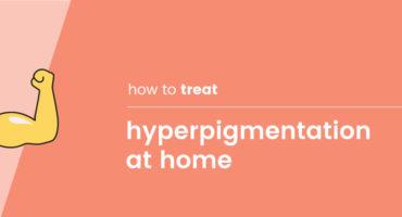 SK-Blog-treat-hyperpigmentation-at-home